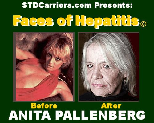 Time Is On My Side (eh bien, c'est mieux comme ça m'écrase ...) Anita-pallenberg-hepatitis-c