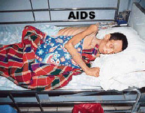 Advanced AIDS