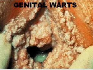 Oral Warts